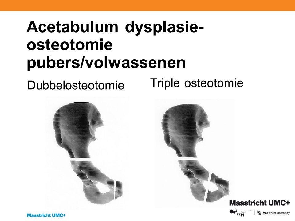 Acetabulum dysplasie- osteotomie pubers/volwassenen