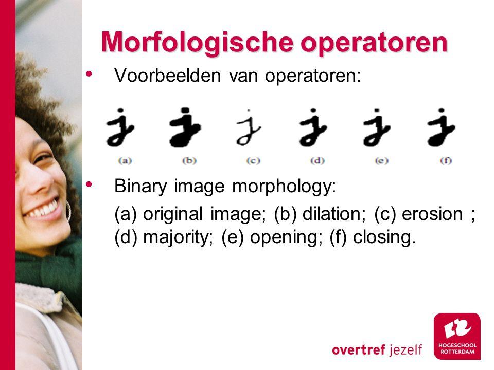 Morfologische operatoren