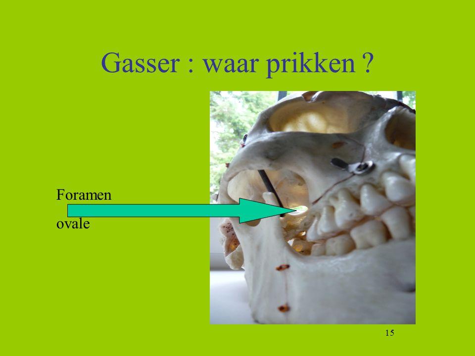 Gasser : waar prikken Foramen ovale