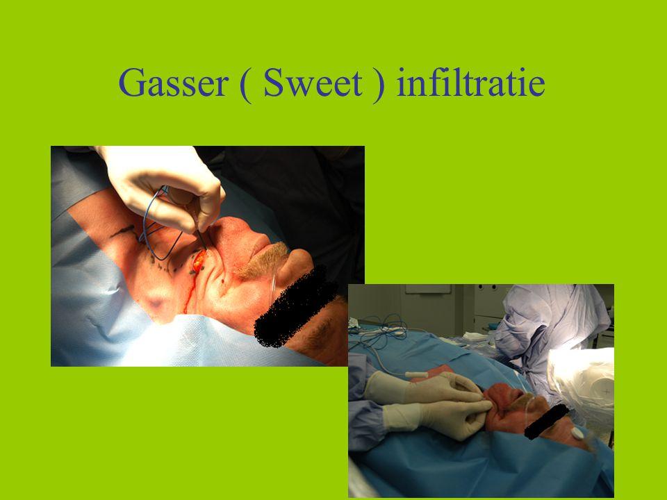 Gasser ( Sweet ) infiltratie