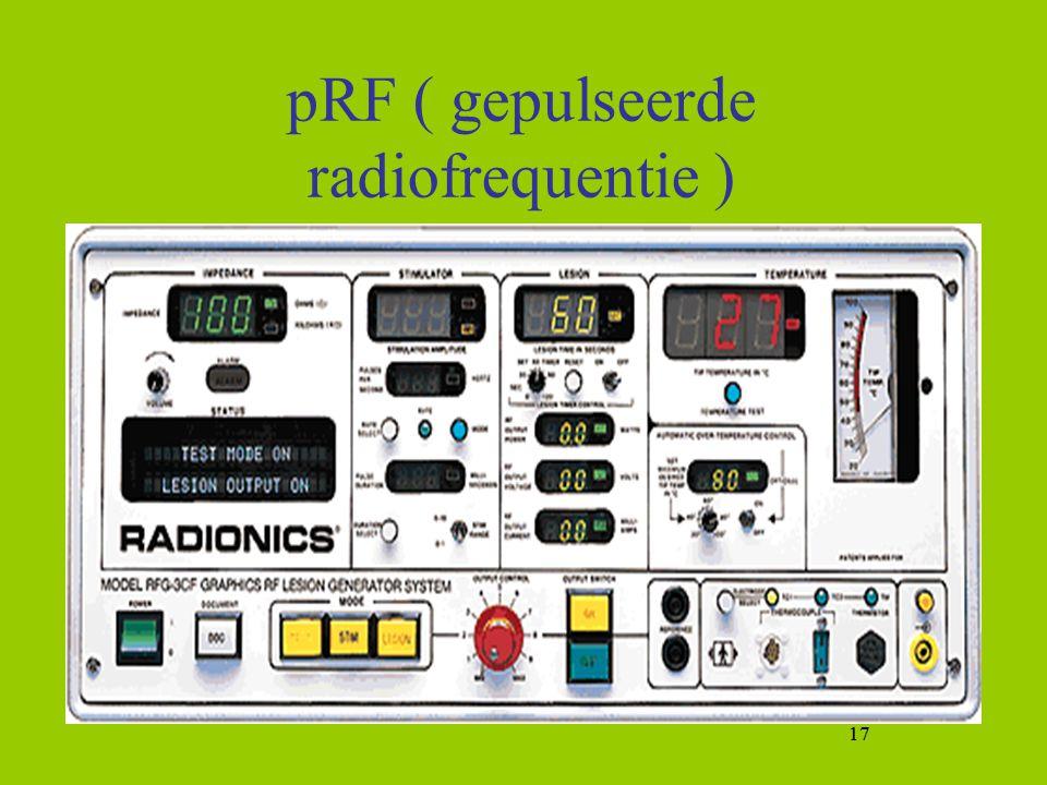 pRF ( gepulseerde radiofrequentie )