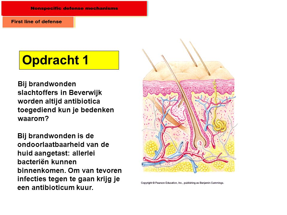 Opdracht 1 Bij brandwonden slachtoffers in Beverwijk worden altijd antibiotica toegediend kun je bedenken waarom