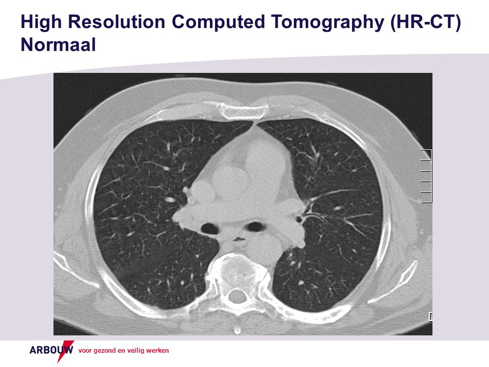 High Resolution Computed Tomography (HR-CT) Normaal