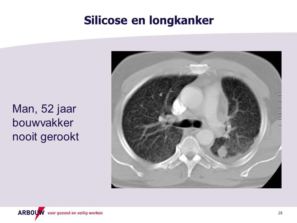 Silicose en longkanker