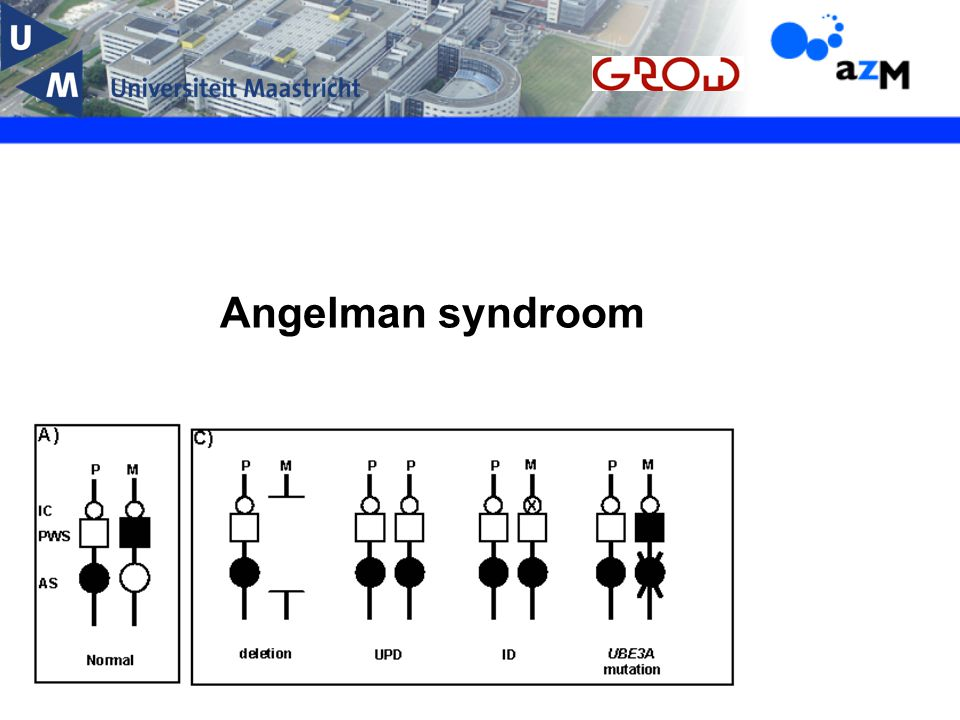 Angelman syndroom