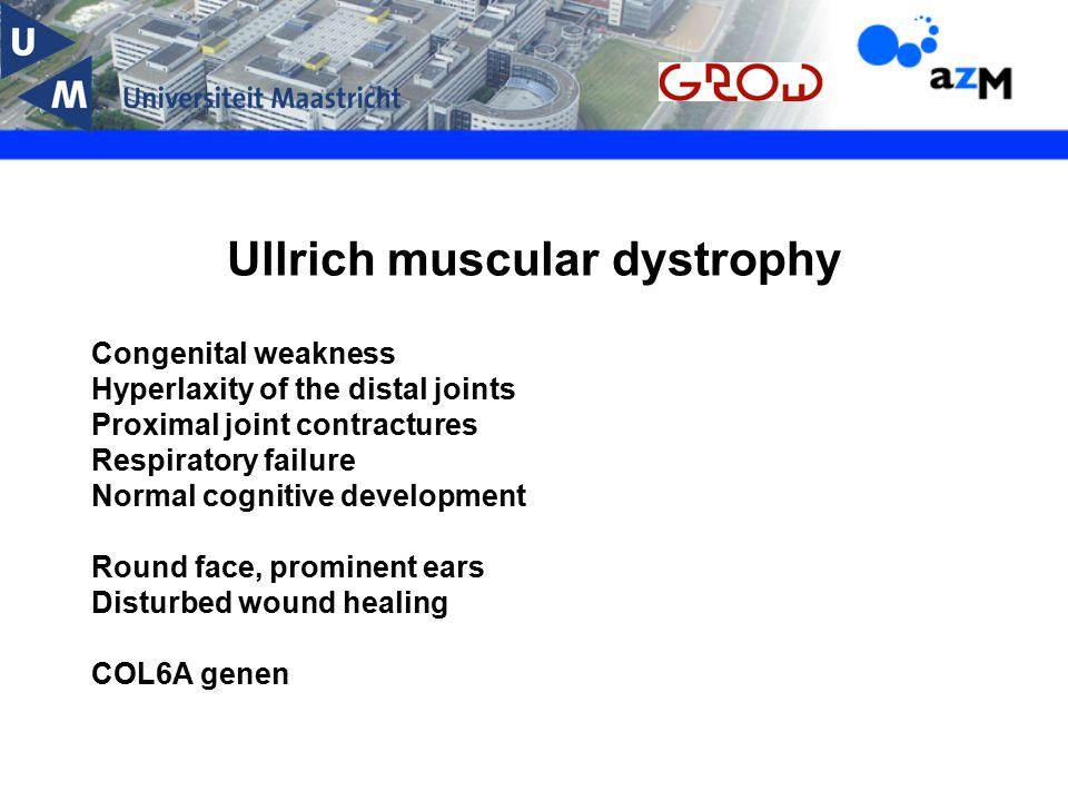 Ullrich muscular dystrophy