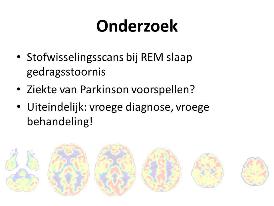 Onderzoek Stofwisselingsscans bij REM slaap gedragsstoornis