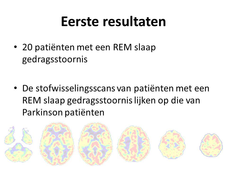Eerste resultaten 20 patiënten met een REM slaap gedragsstoornis