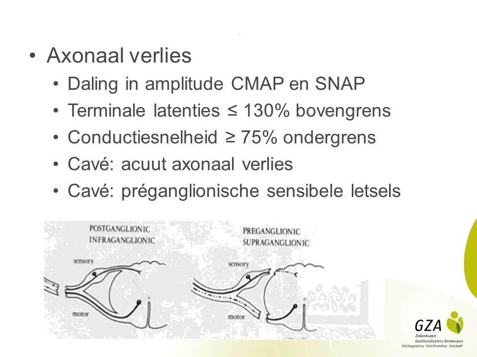 Axonaal verlies Daling in amplitude CMAP en SNAP