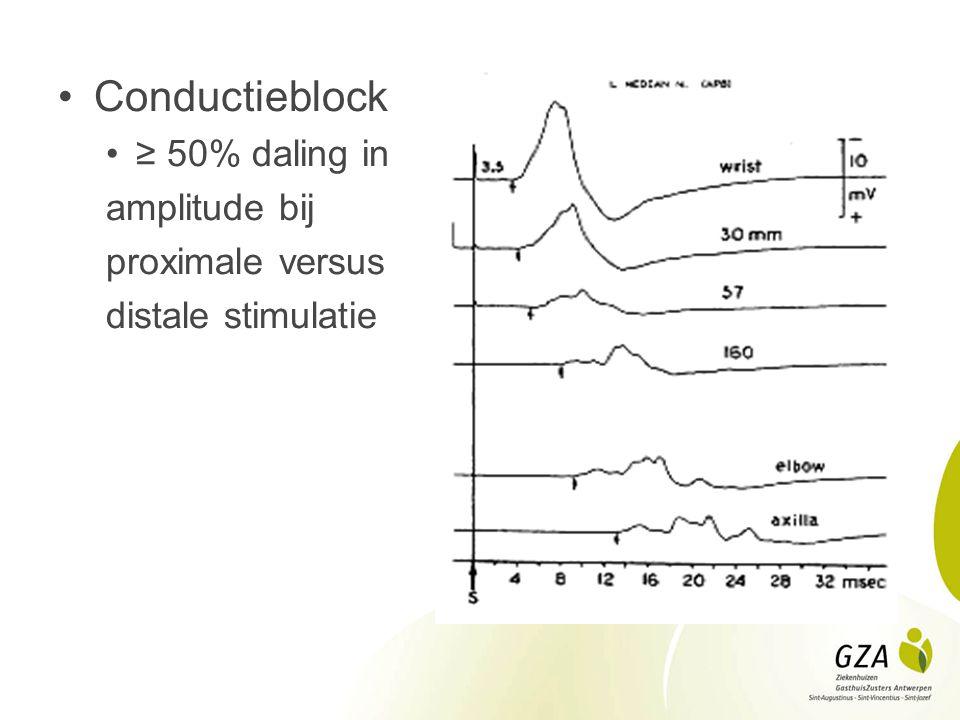 Conductieblock ≥ 50% daling in amplitude bij proximale versus