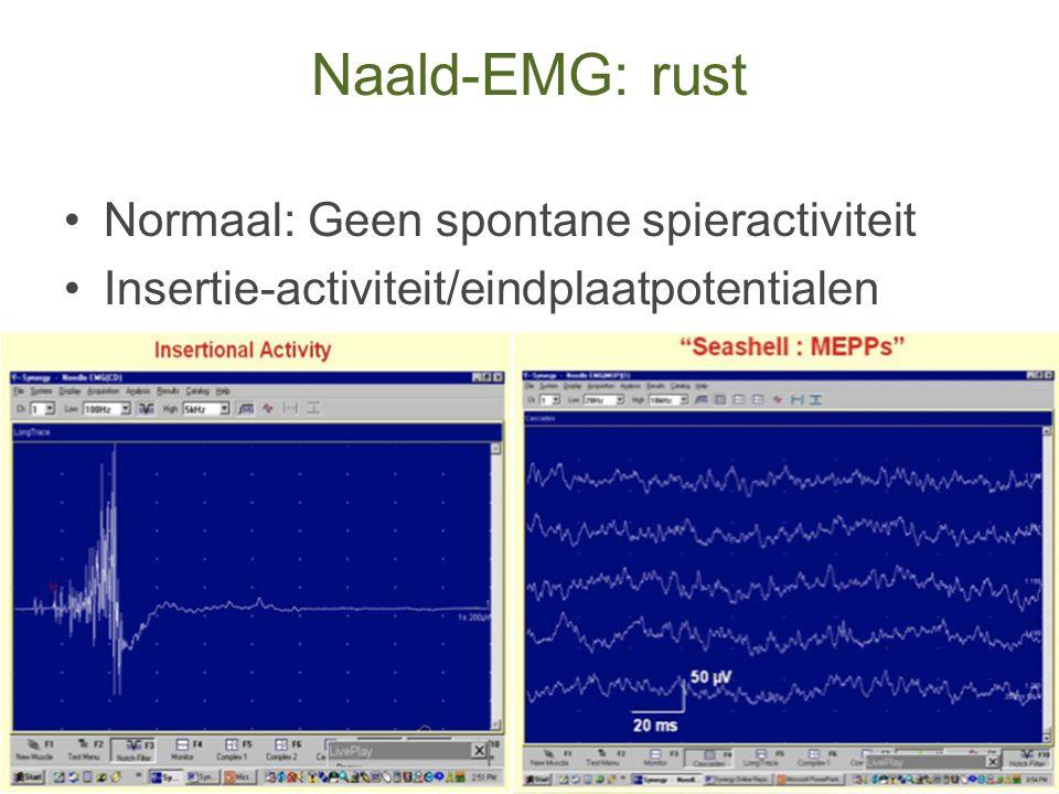 Naald-EMG: rust Normaal: Geen spontane spieractiviteit