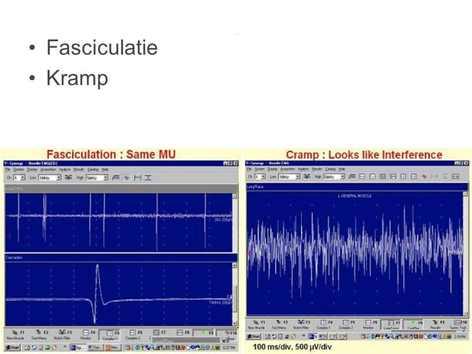 . Fasciculatie Kramp