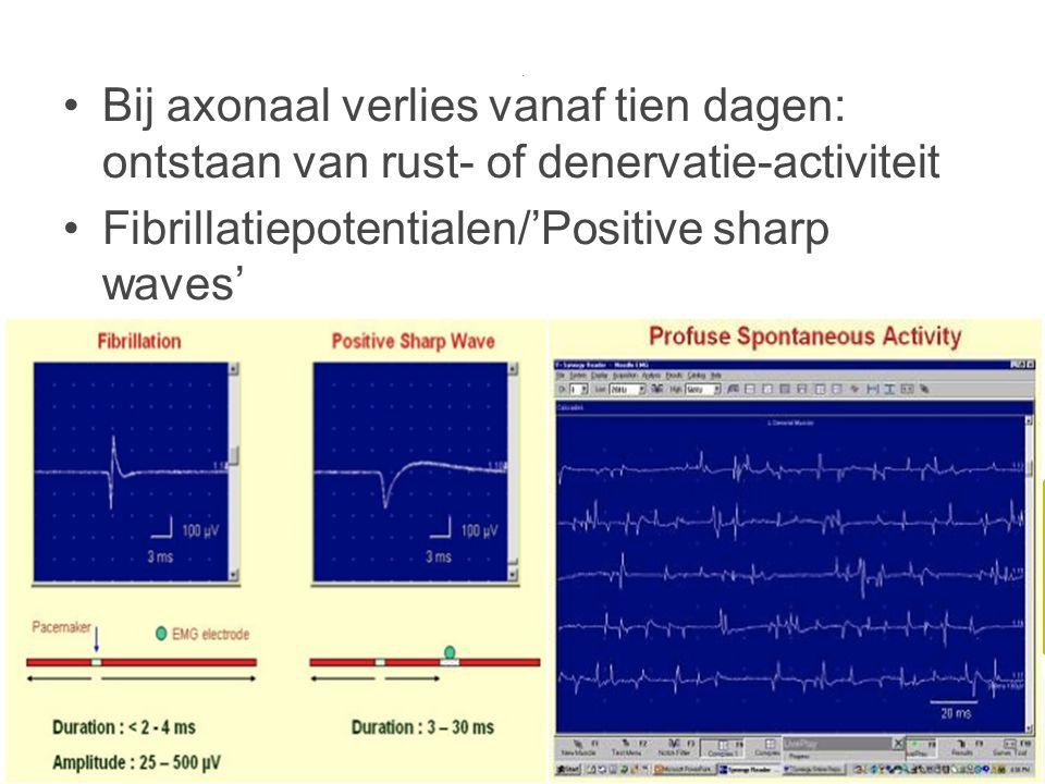 Fibrillatiepotentialen/'Positive sharp waves'