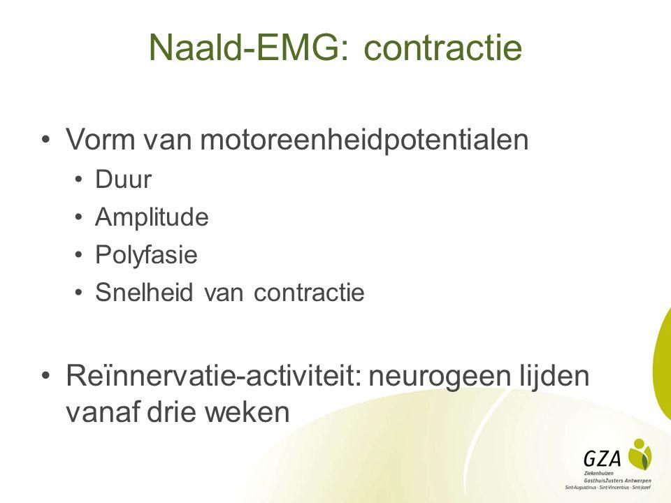Naald-EMG: contractie