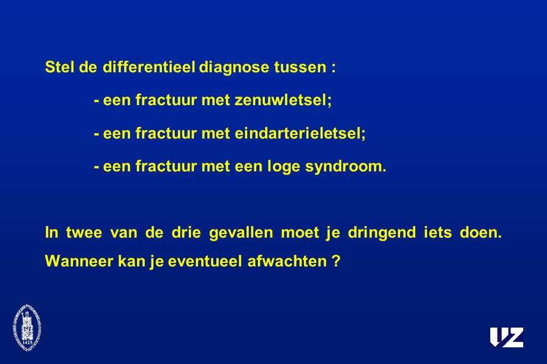 Stel de differentieel diagnose tussen :