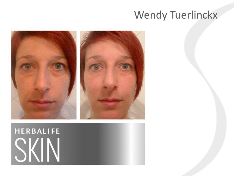 Quiz Question Wendy Tuerlinckx