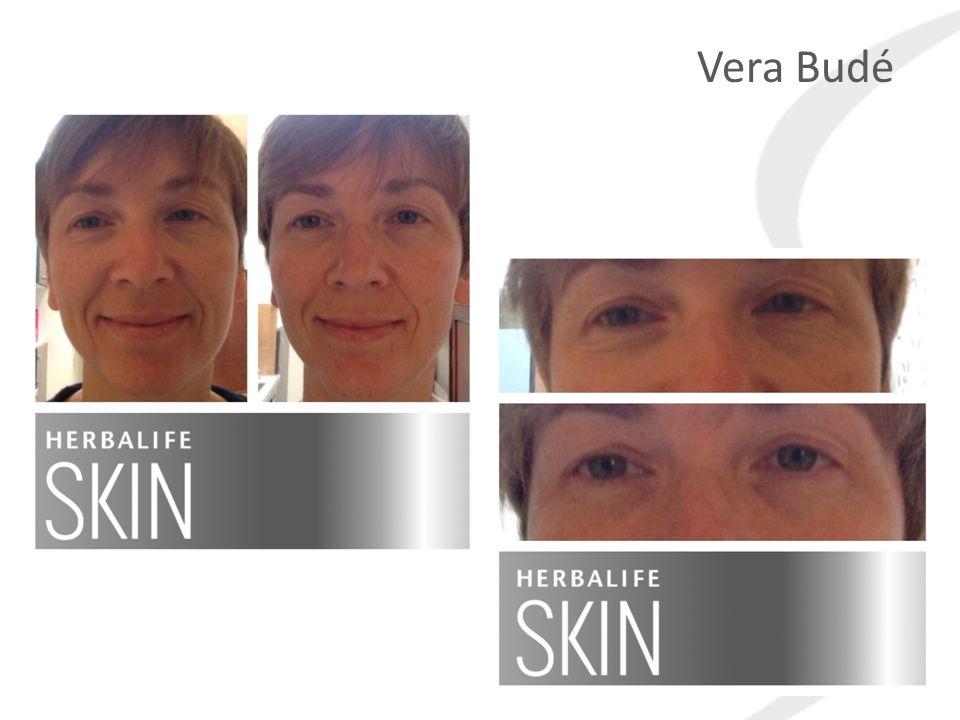 Quiz Question Vera Budé