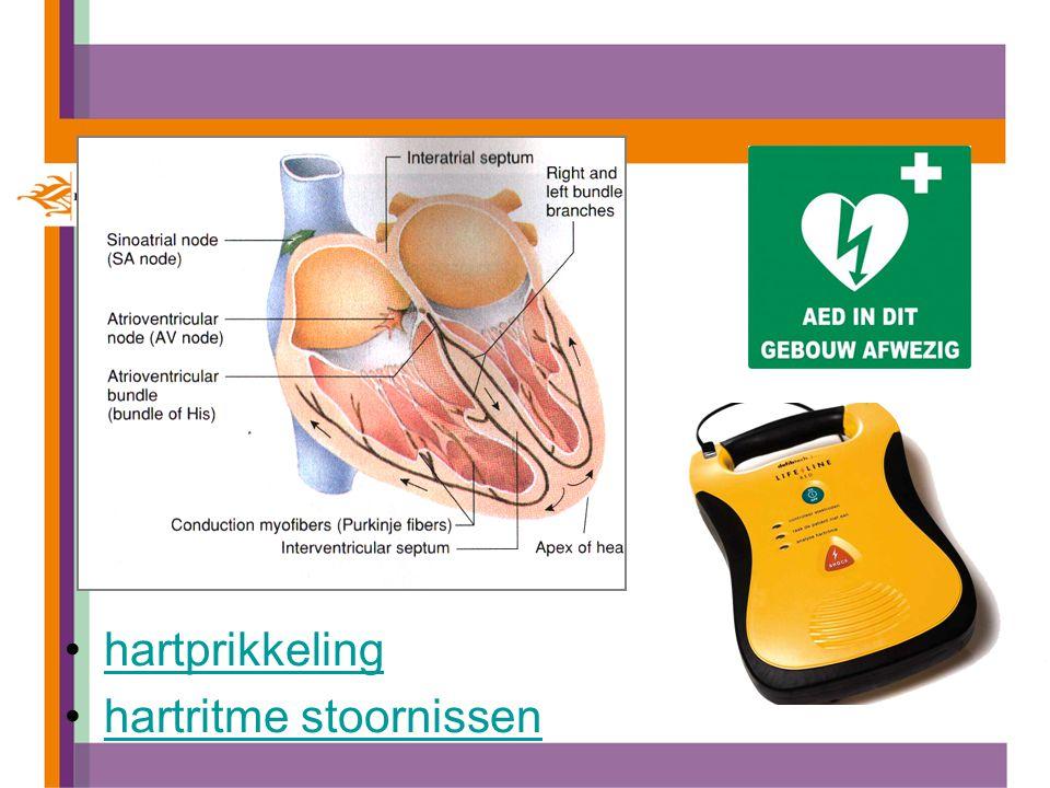 hartprikkeling hartritme stoornissen