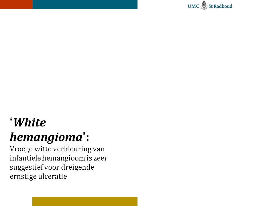 hemangioom in de lever