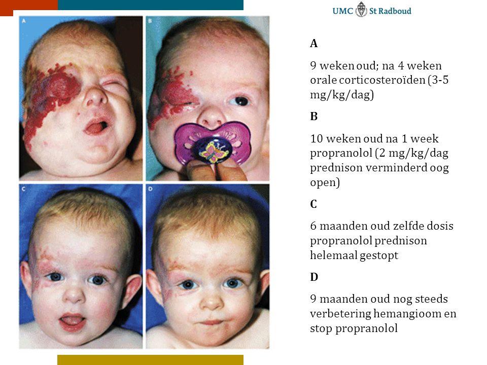 A 9 weken oud; na 4 weken orale corticosteroïden (3-5 mg/kg/dag) B. 10 weken oud na 1 week propranolol (2 mg/kg/dag prednison verminderd oog open)