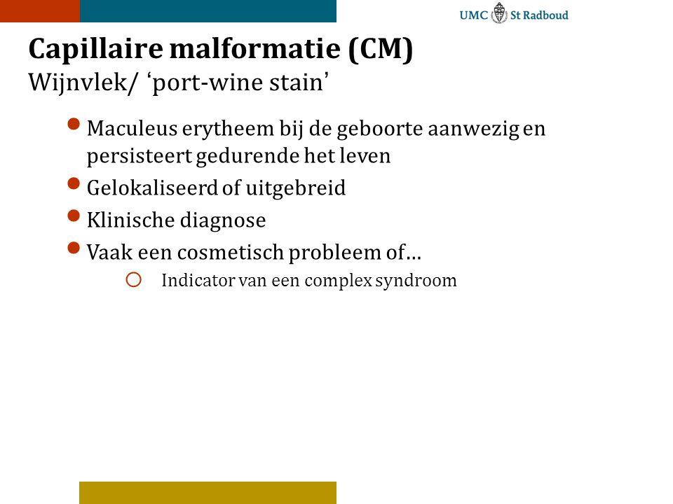 Capillaire malformatie (CM) Wijnvlek/ 'port-wine stain'