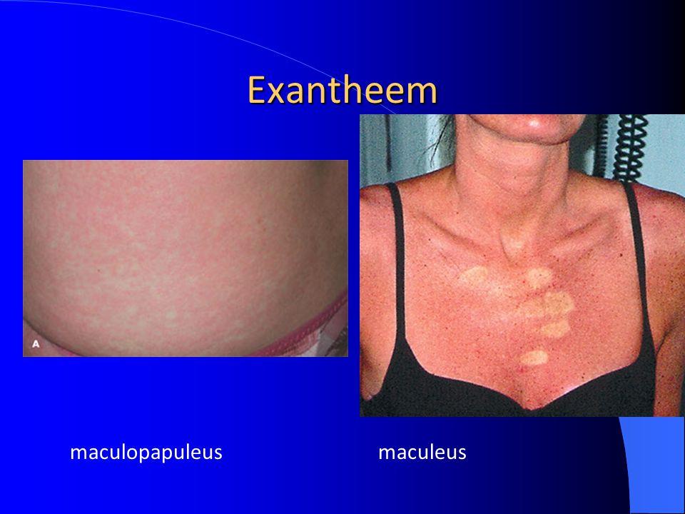 Exantheem maculopapuleus maculeus