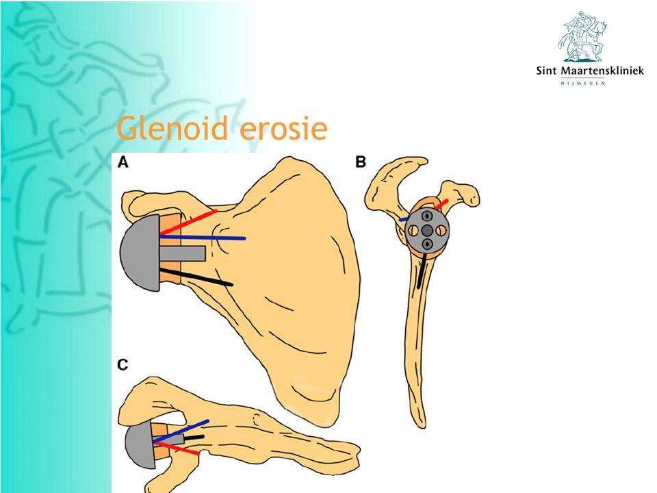 Glenoid erosie