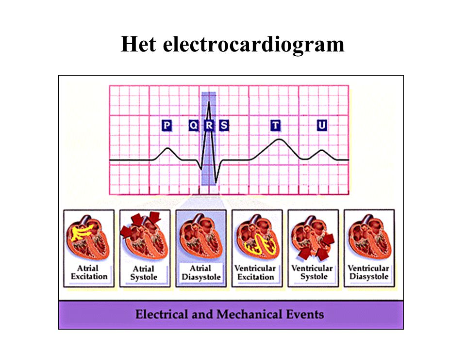Het electrocardiogram
