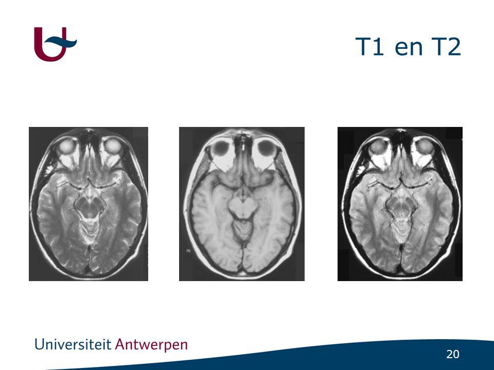 Effect op weefsels T1 en T2 CONSTANTEN T2 bij 1.5 T (ms) T1 bij 1.5 T