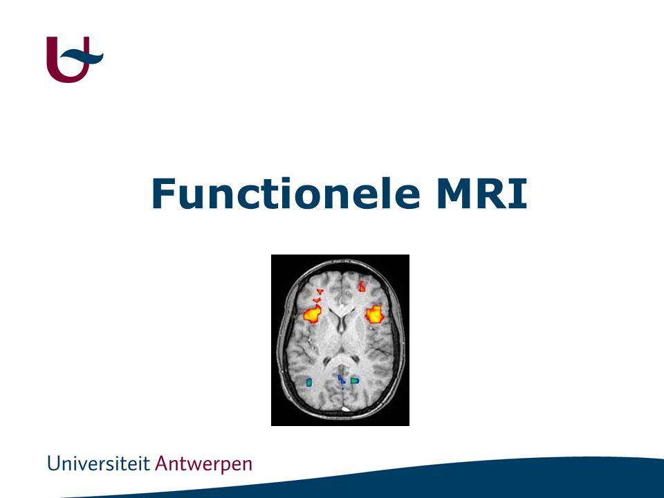 MRI versus fMRI MRI : anatomie fMRI: functies
