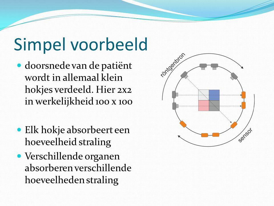Simpel voorbeeld doorsnede van de patiënt wordt in allemaal klein hokjes verdeeld. Hier 2x2 in werkelijkheid 100 x 100.
