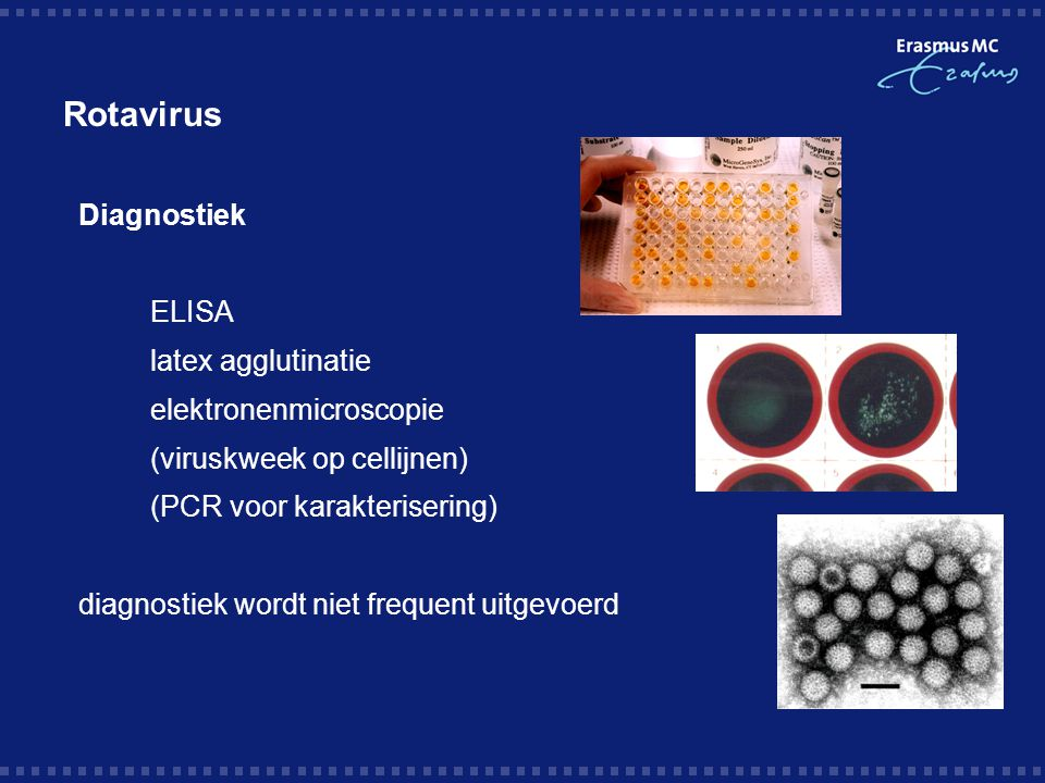 Rotavirus Diagnostiek ELISA latex agglutinatie elektronenmicroscopie