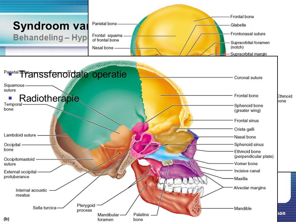 Syndroom van Cushing Behandeling – Hypofyse adenoom
