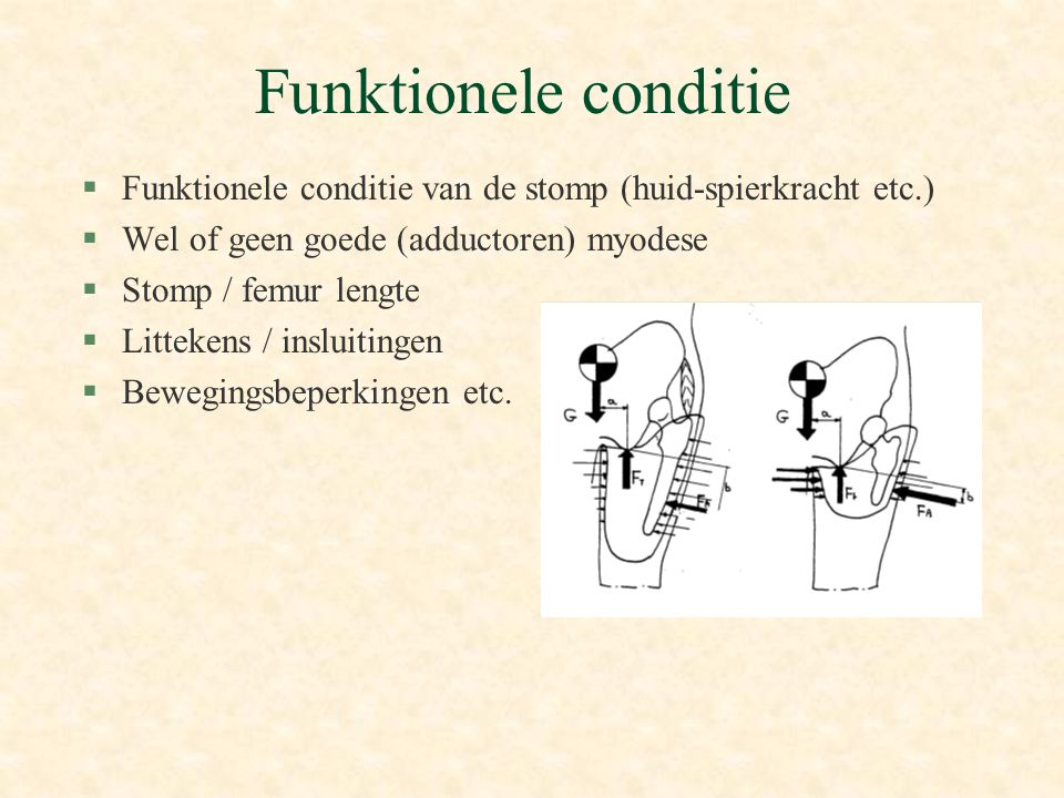Funktionele conditie Funktionele conditie van de stomp (huid-spierkracht etc.) Wel of geen goede (adductoren) myodese.