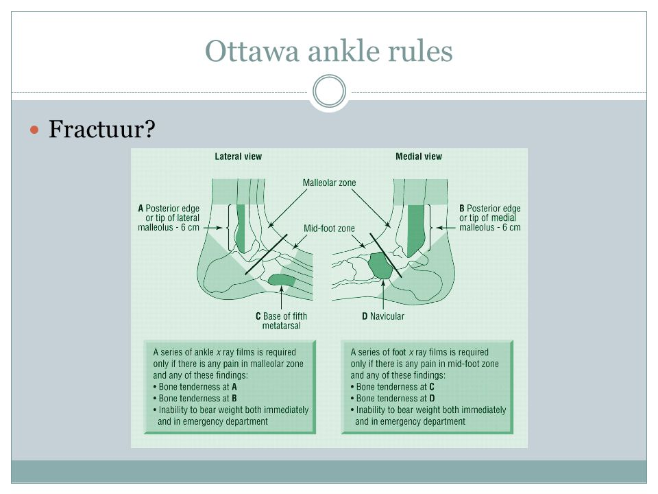 Ottawa ankle rules Fractuur