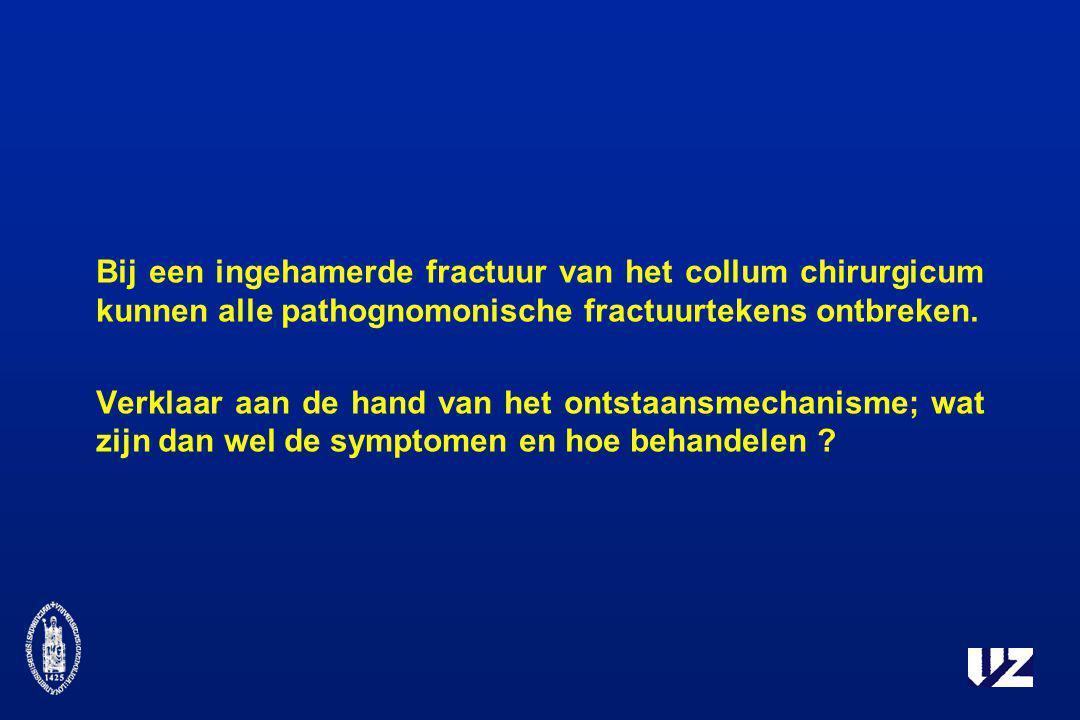 Bij een ingehamerde fractuur van het collum chirurgicum kunnen alle pathognomonische fractuurtekens ontbreken.