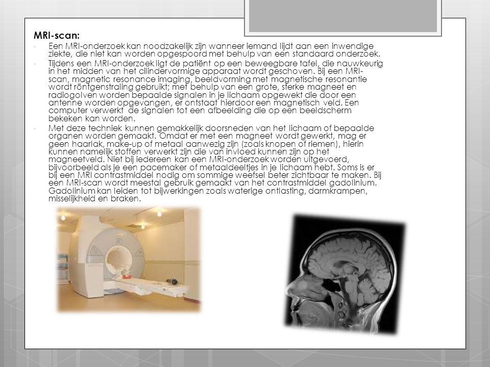 MRI-scan:
