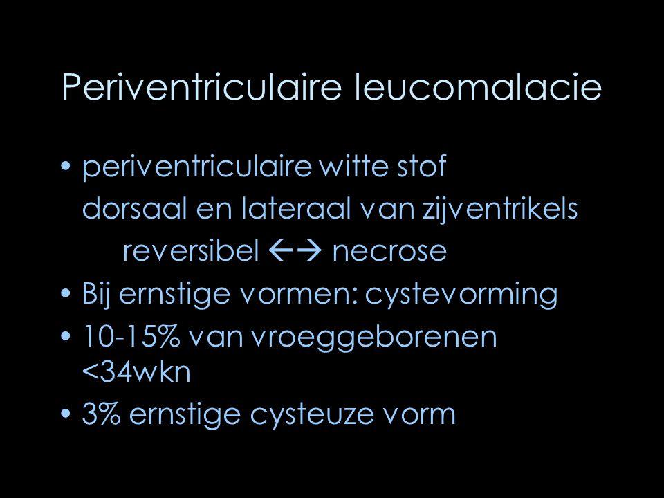 Periventriculaire leucomalacie