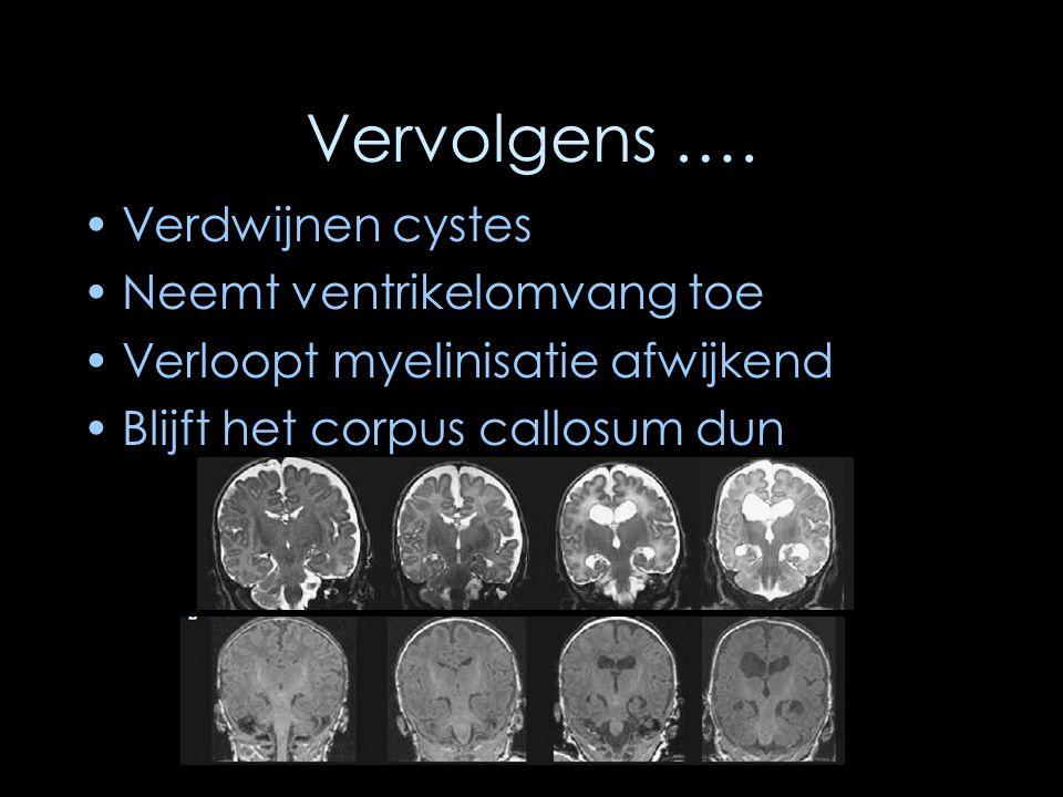 Vervolgens …. Verdwijnen cystes Neemt ventrikelomvang toe