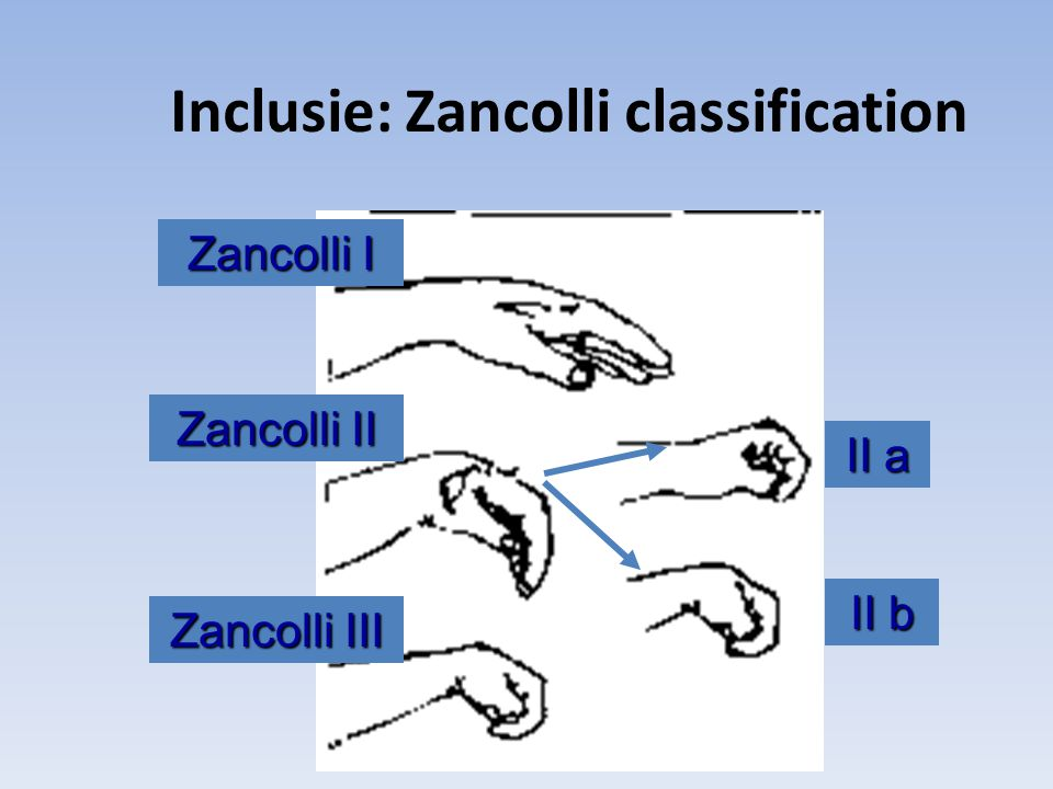 Inclusie: Zancolli classification