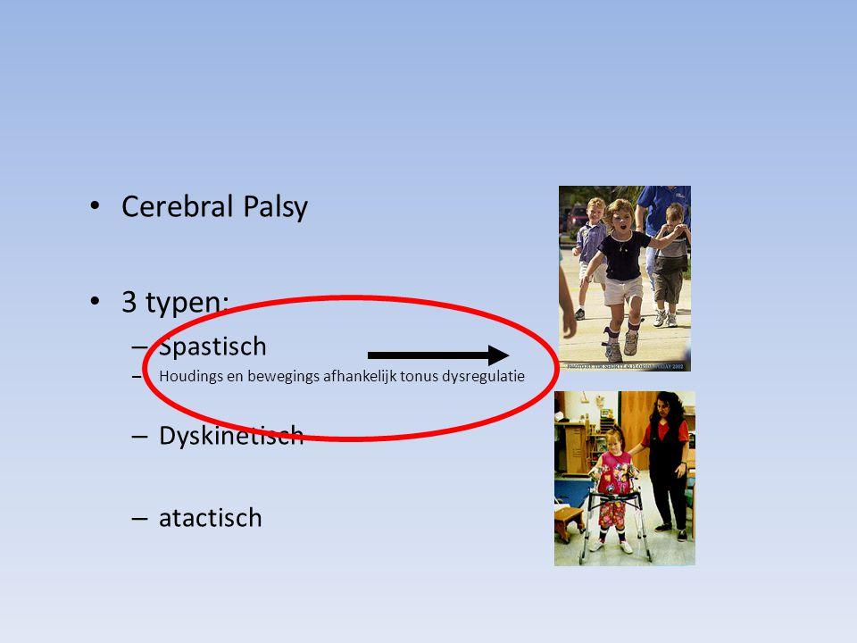 Cerebral Palsy 3 typen: Spastisch Dyskinetisch atactisch