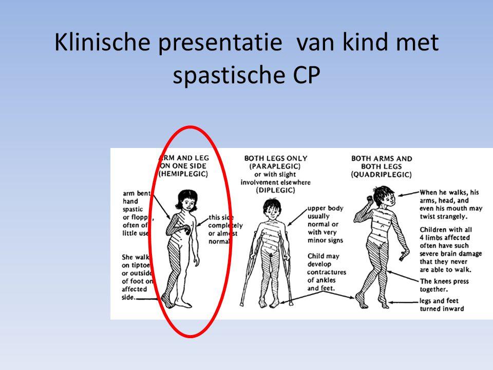 Klinische presentatie van kind met spastische CP