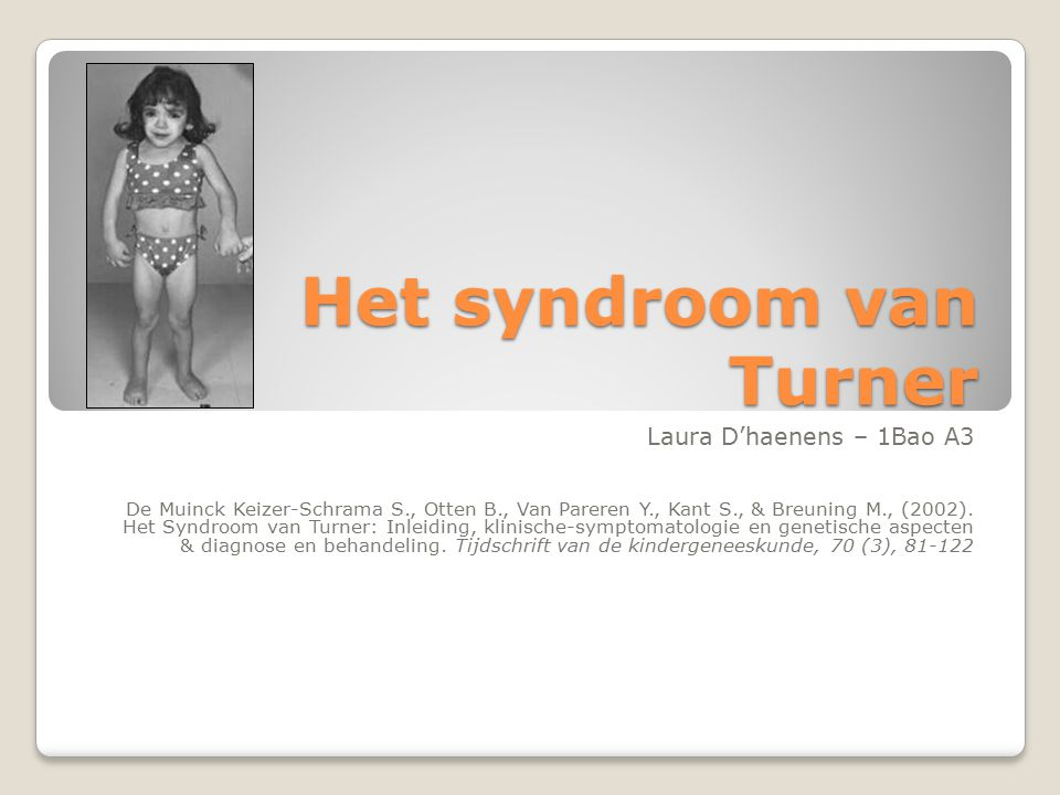 Het syndroom van Turner