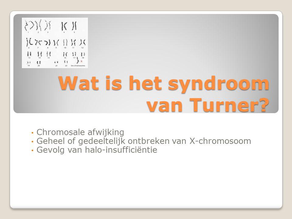 Wat is het syndroom van Turner