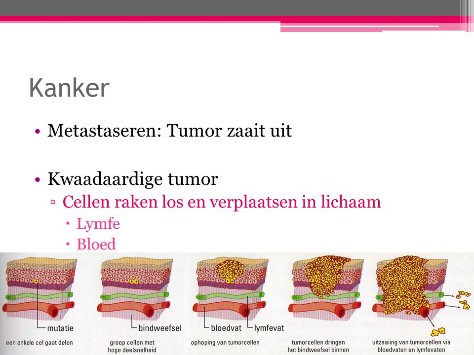 Kanker Metastaseren: Tumor zaait uit Kwaadaardige tumor