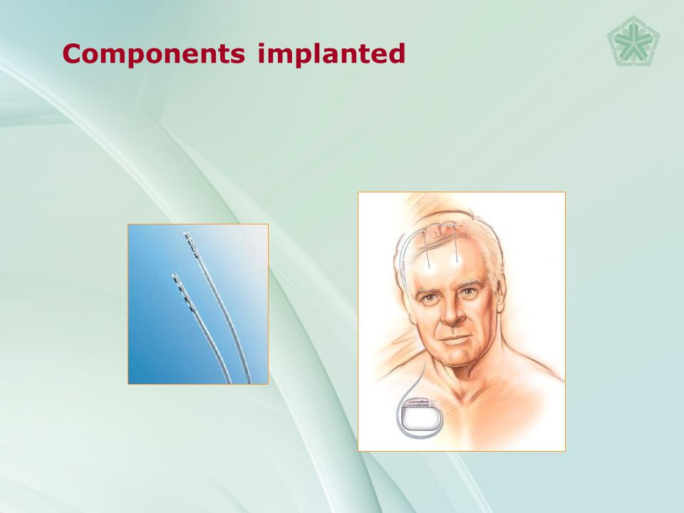 Components implanted The Activa® System comprises the lead, extension and neurostimulator, all of which are fully implantable.