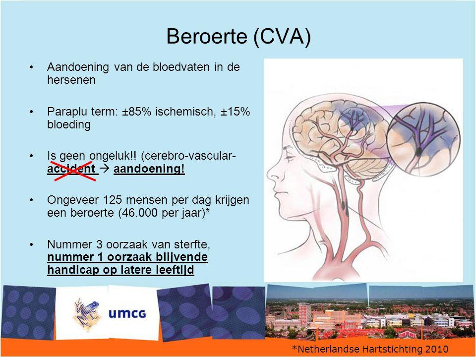 Beroerte (CVA) Aandoening van de bloedvaten in de hersenen