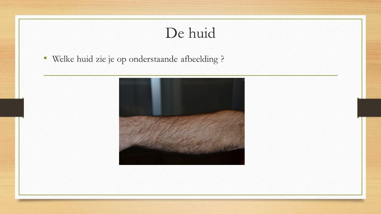 De huid Welke huid zie je op onderstaande afbeelding