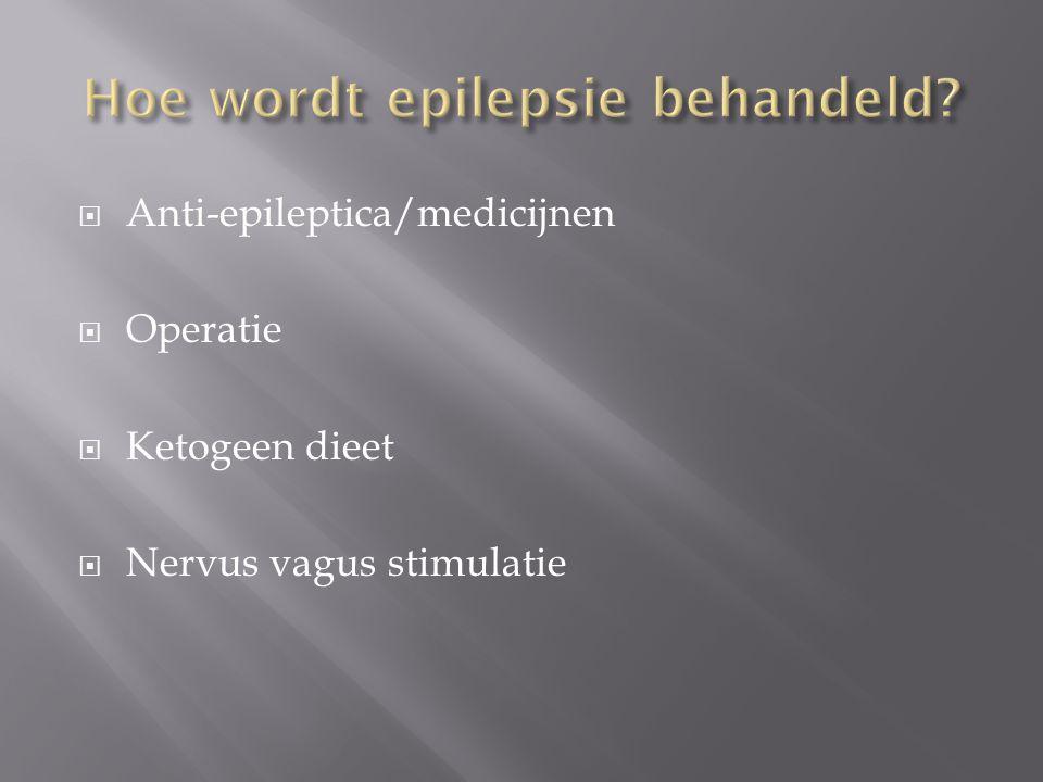 Hoe wordt epilepsie behandeld