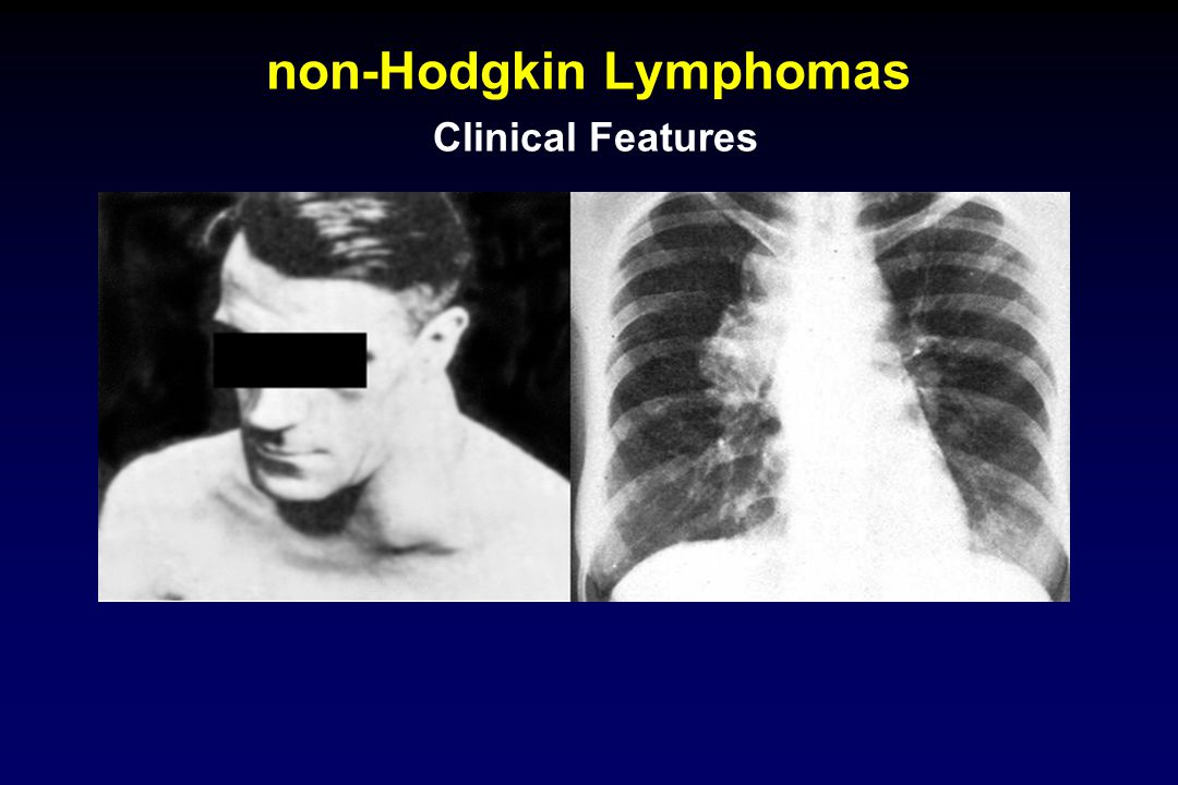non-Hodgkin Lymphomas Clinical Features